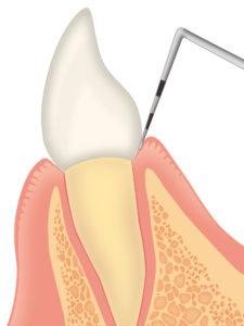歯周ポケットの検査