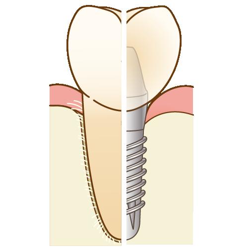 インプラントと歯の比較