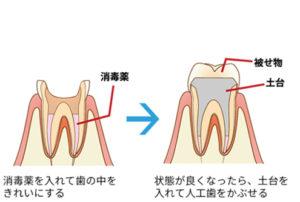 神経の処置2