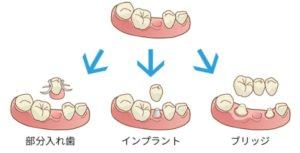 残根の治療または抜歯