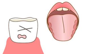 歯ぎしりのトラブル