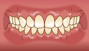 良い歯並び・かみ合わせとは