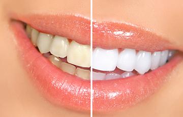 歯を漂白するホワイトニング