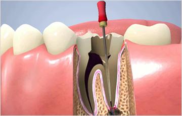 虫歯の進行状態C3の時:神経を処置する必要がある場合