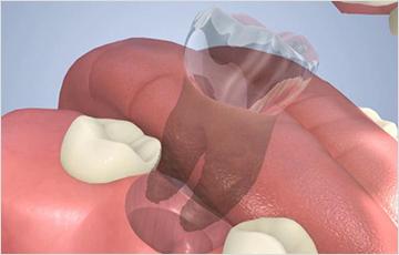 虫歯の進行状態C4の時:残根の治療または抜歯