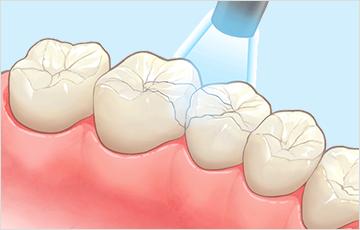 虫歯の進行C1の時:充填治療