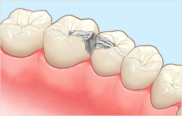 虫歯の進行状態C2の時:インレー治療