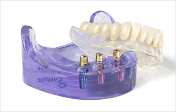 インプラント併用義歯(インプラントオーバーデンチャー)