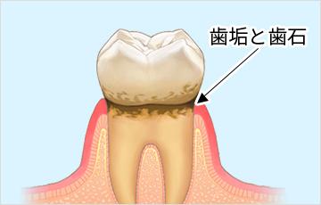 歯周病の原因はプラーク